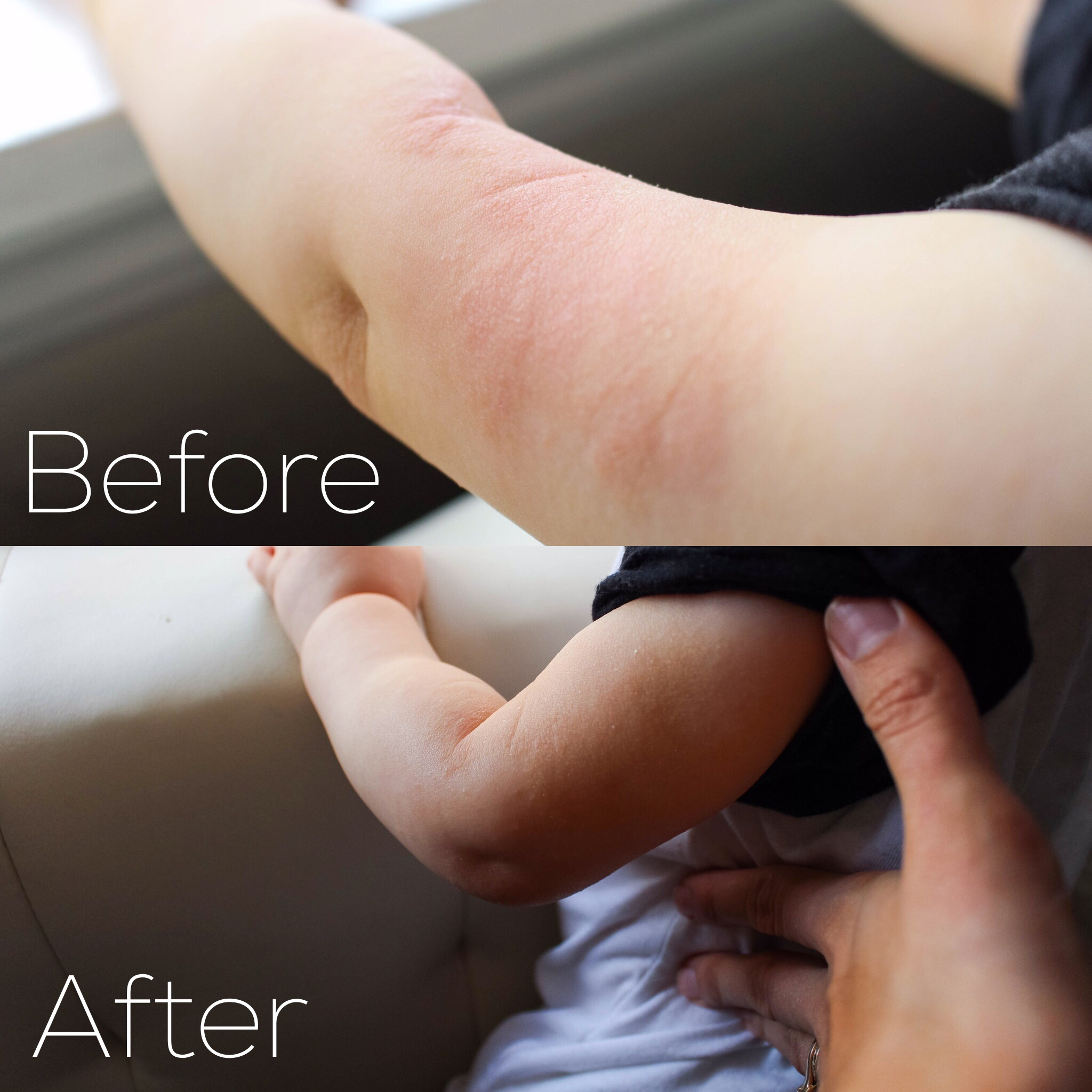 Natural Eczema Treatments & Itch Relief // Happily Lindsey blog